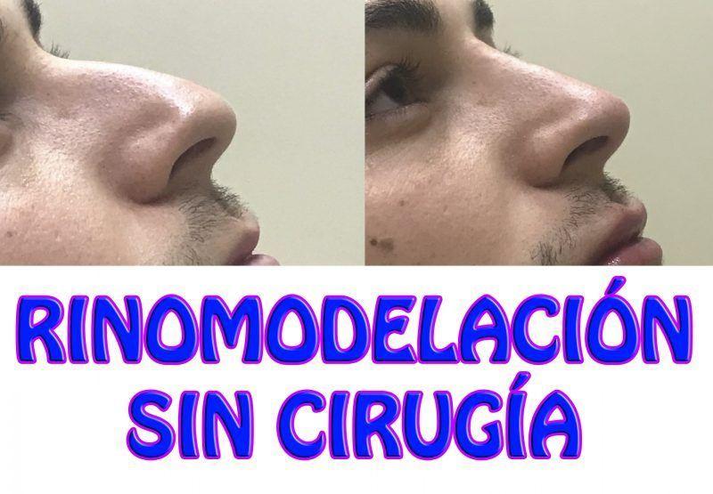 Rinomodelación sin cirugía con ácido hialurónico hombre